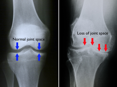 x ray of young arthritic knee sports surgery clinic