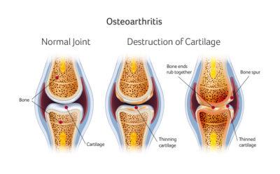 Osteoarthritis Knee Surgery Santry