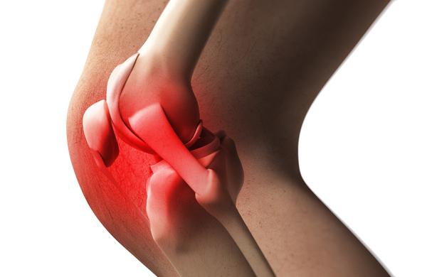 Patellofemoral pain - Knee surgery santry