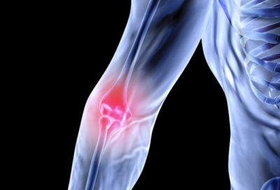 Elbow Surgery Santry