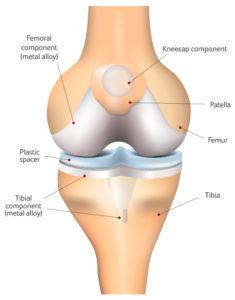 Knee Surgery Santry