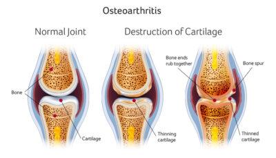 Osteoarthritis Sports Surgery Clinic