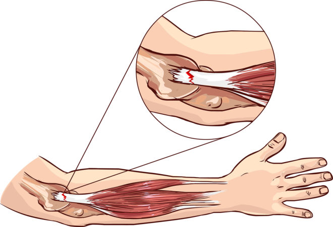 Tennis Elbow Sports Surgery Clinic