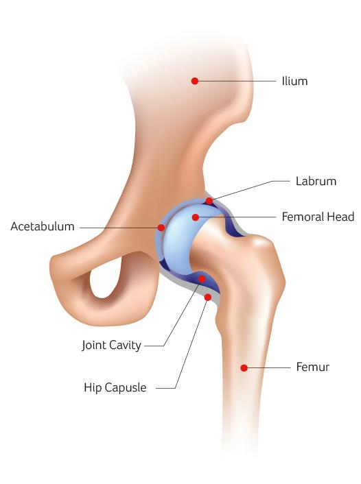Hip Surgery Santry Dublin