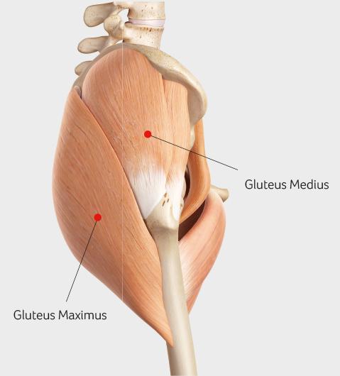 GLUTEUS MEDIUS TENDINOPATHY at Sports Surgery Clinic Dublin