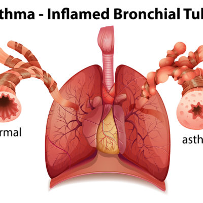 Exercise Induced Asthma Santry